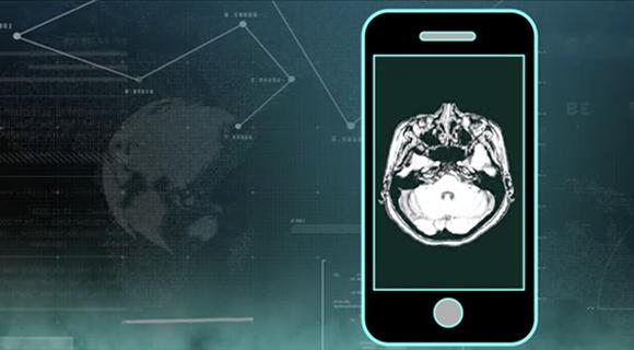汇医慧影数字智能胶片,让AI服务于患者