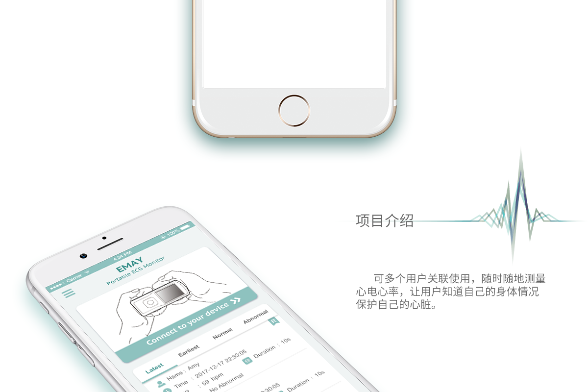 Emay Portable ECG Monior系统